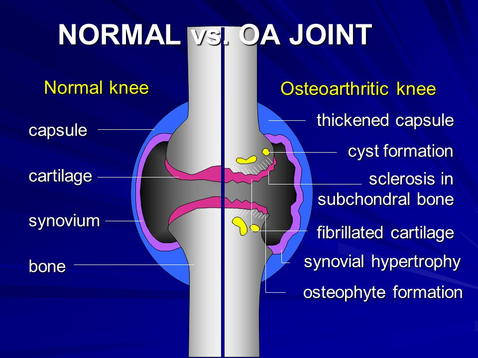 NORMAL vs. OA JOINT Normal knee. Osteoarthritic knee. thickened capsule. capsule. cyst formation.