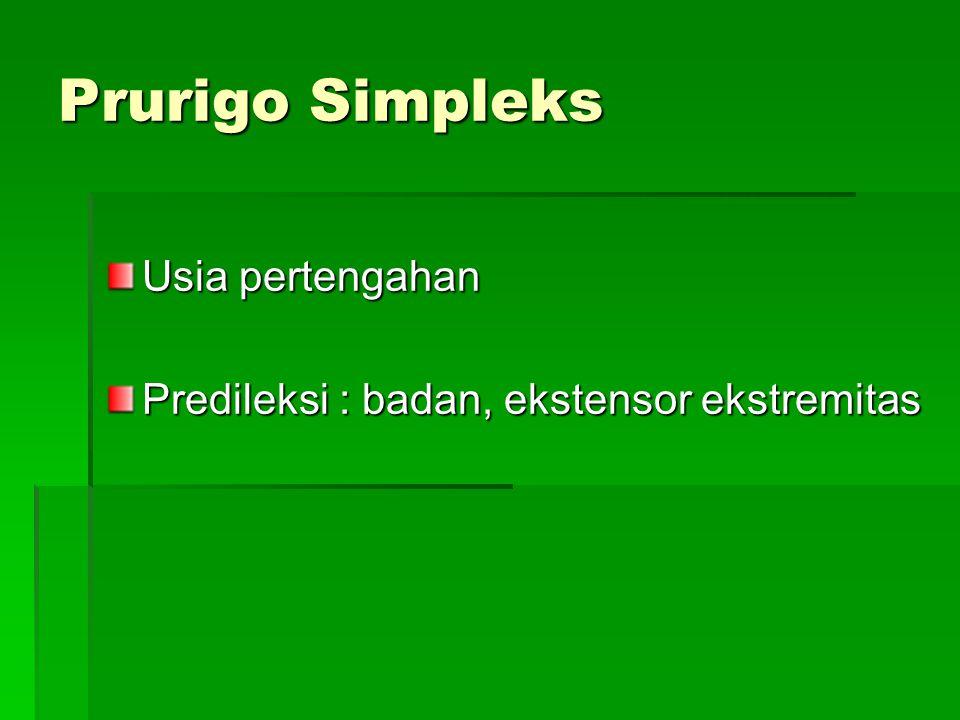 Prurigo Simpleks Usia pertengahan