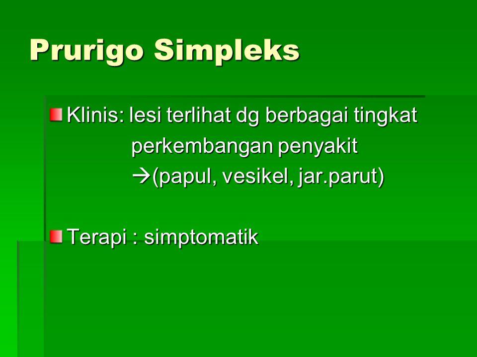 Prurigo Simpleks Klinis: lesi terlihat dg berbagai tingkat