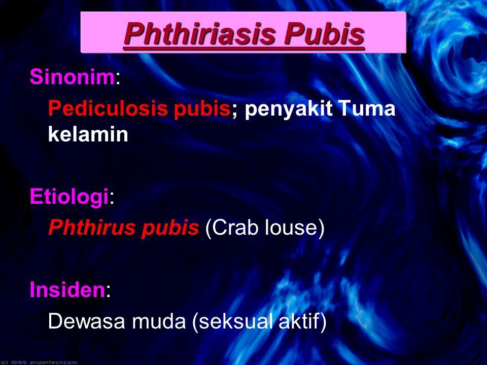 Phthiriasis Pubis Sinonim: Pediculosis pubis; penyakit Tuma kelamin