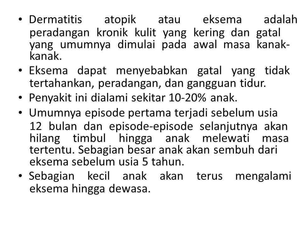 • Dermatitis atopik atau eksema adalah