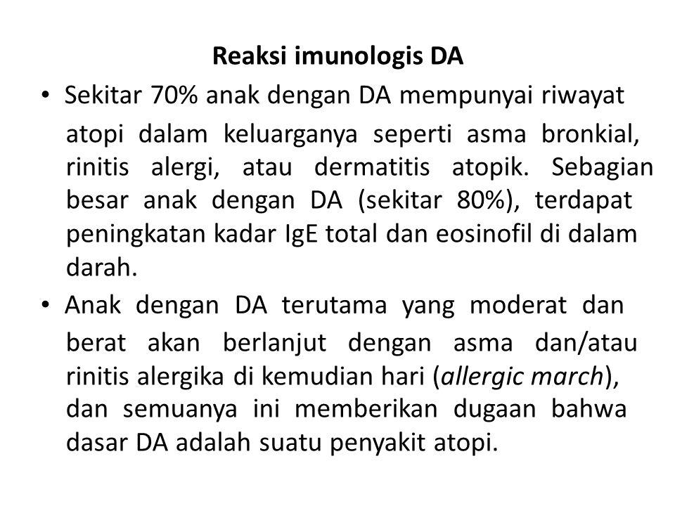 Reaksi imunologis DA • Sekitar 70% anak dengan DA mempunyai riwayat. atopi dalam keluarganya seperti asma bronkial,