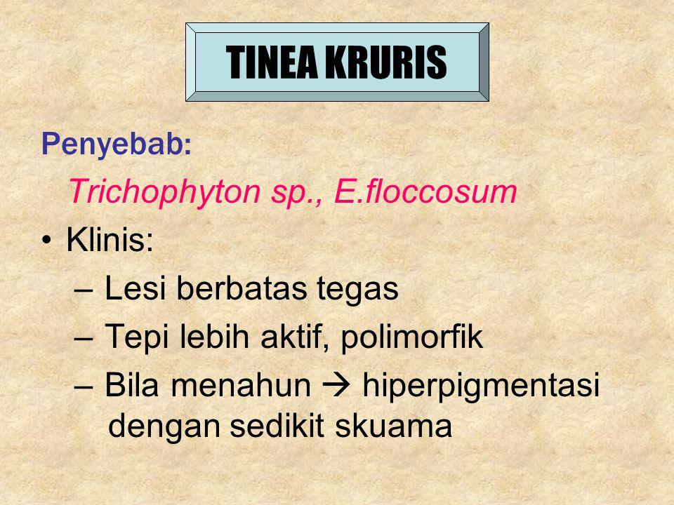 TINEA KRURIS Penyebab: Trichophyton sp., E.floccosum Klinis: