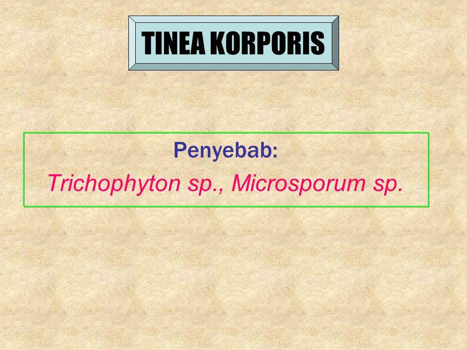 TINEA KORPORIS Penyebab: Trichophyton sp., Microsporum sp.