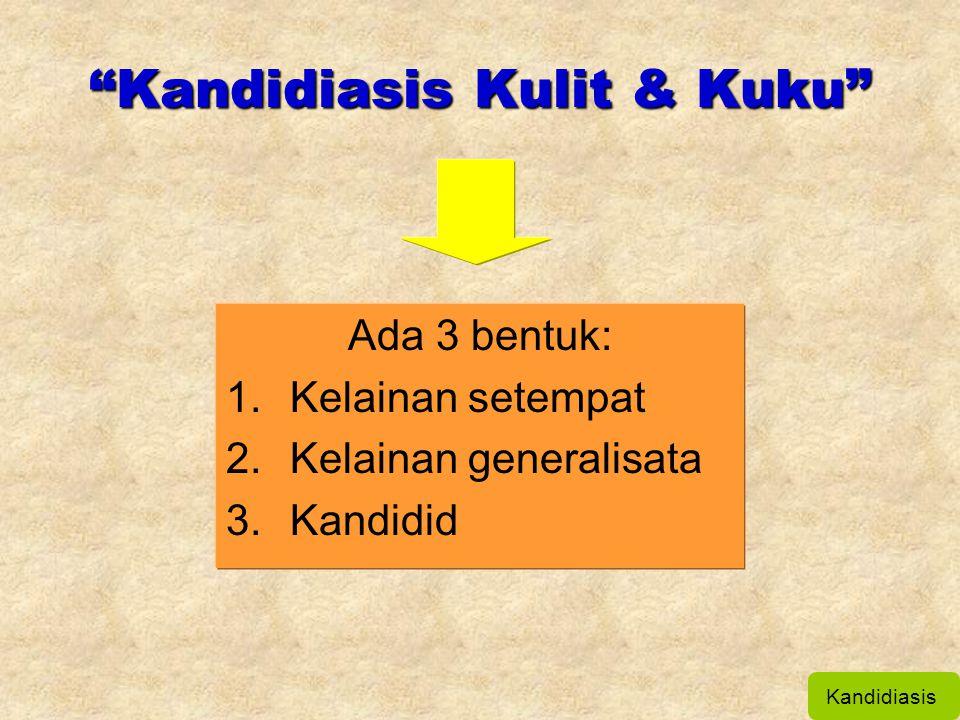 Kandidiasis Kulit & Kuku