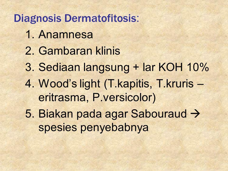 Diagnosis Dermatofitosis: