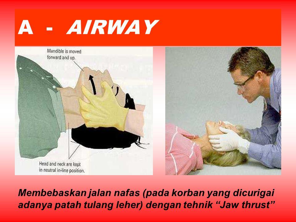 A - AIRWAY Membebaskan jalan nafas (pada korban yang dicurigai adanya patah tulang leher) dengan tehnik Jaw thrust
