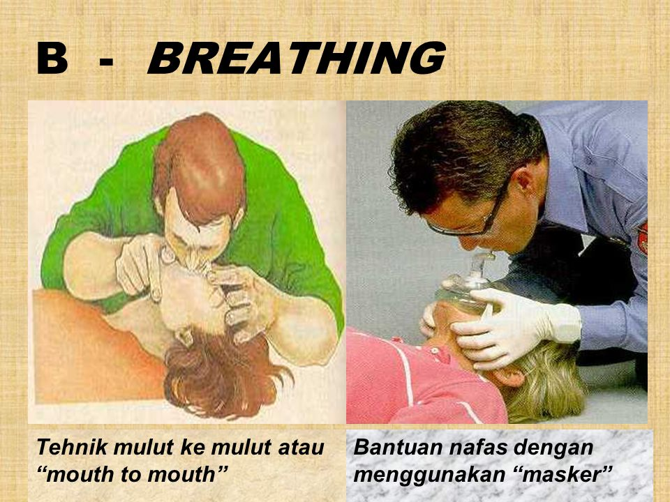 B - BREATHING Tehnik mulut ke mulut atau mouth to mouth