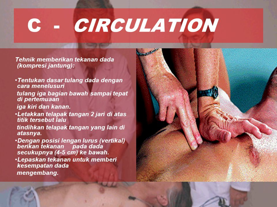 C - CIRCULATION Tehnik memberikan tekanan dada (kompresi jantung):