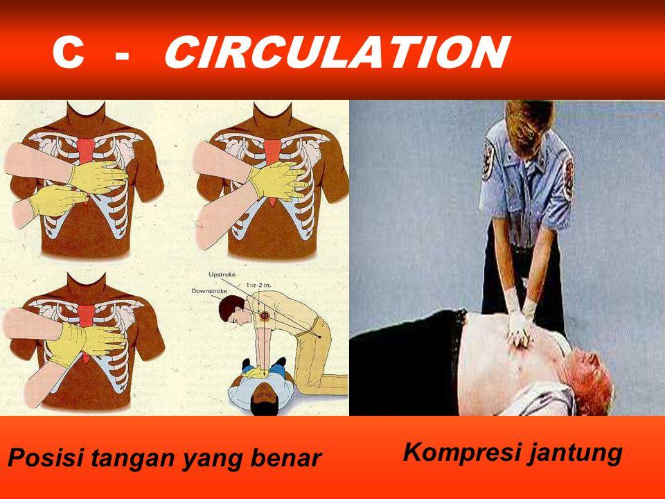 C - CIRCULATION Kompresi jantung Posisi tangan yang benar