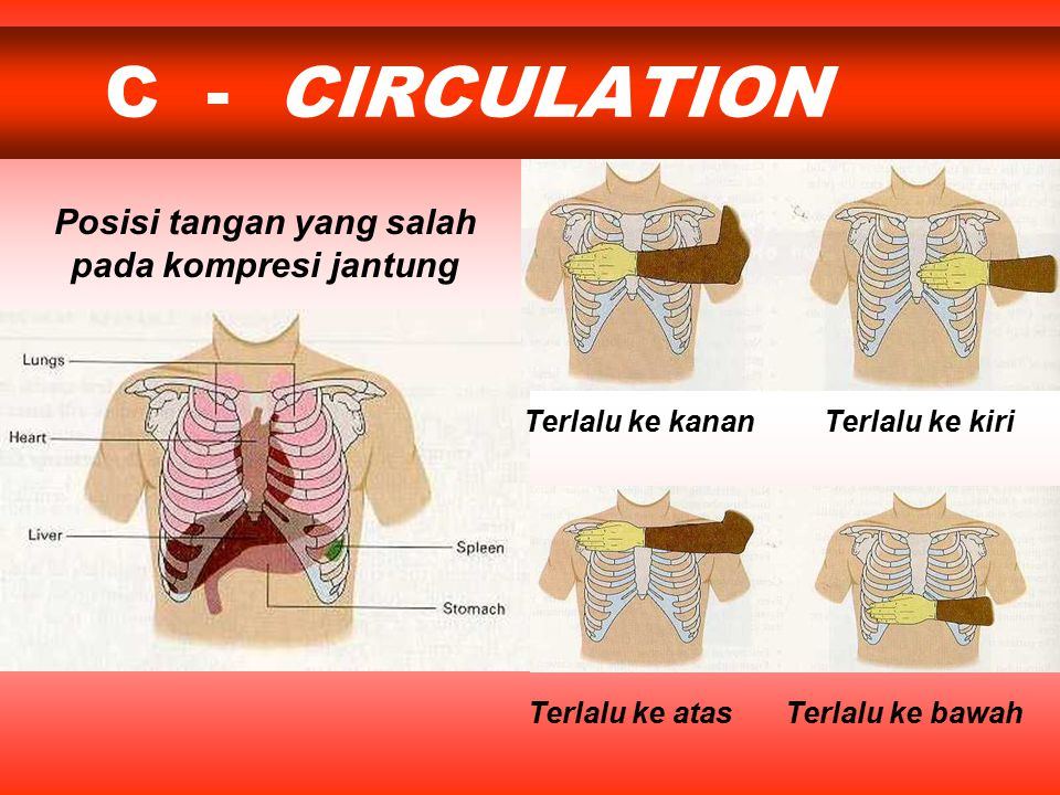 Posisi tangan yang salah pada kompresi jantung