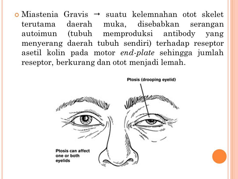 Miastenia Gravis  suatu kelemnahan otot skelet terutama daerah muka, disebabkan serangan autoimun (tubuh memproduksi antibody yang menyerang daerah tubuh sendiri) terhadap reseptor asetil kolin pada motor end-plate sehingga jumlah reseptor, berkurang dan otot menjadi lemah.