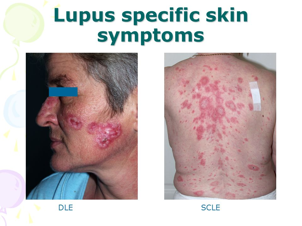 Lupus specific skin symptoms