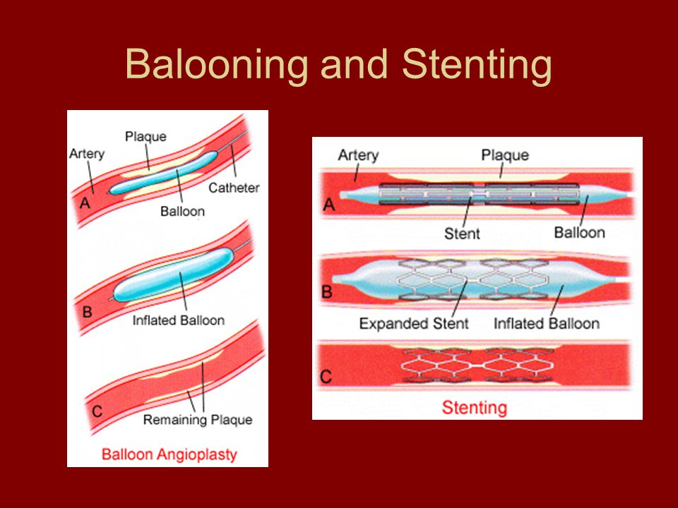 Balooning and Stenting