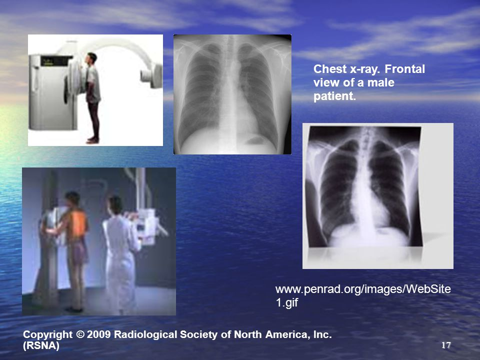 Chest x-ray. Frontal view of a male patient.