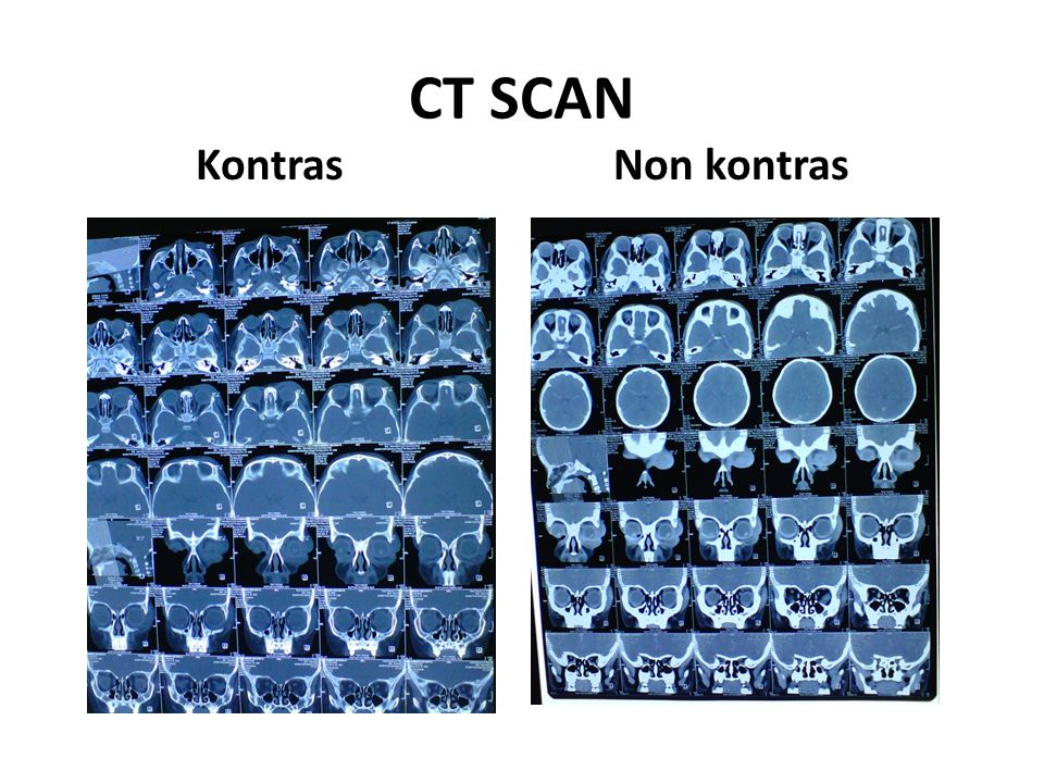 CT SCAN Kontras Non kontras