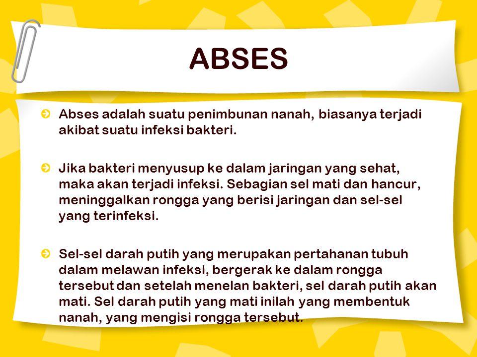 ABSES Abses adalah suatu penimbunan nanah, biasanya terjadi akibat suatu infeksi bakteri.