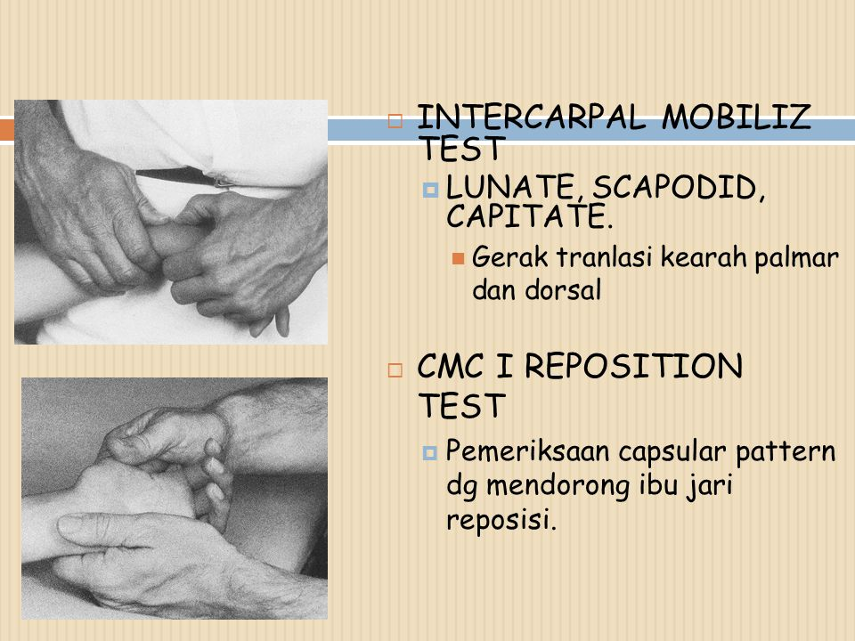 INTERCARPAL MOBILIZ TEST