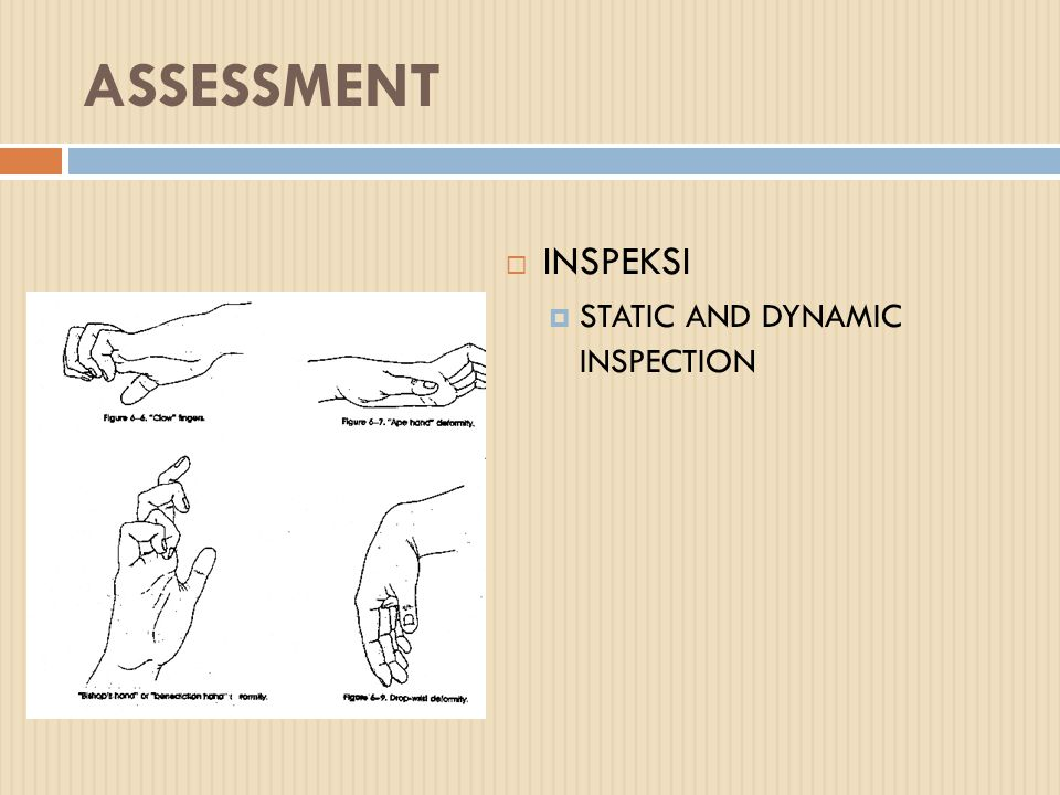 ASSESSMENT INSPEKSI STATIC AND DYNAMIC INSPECTION