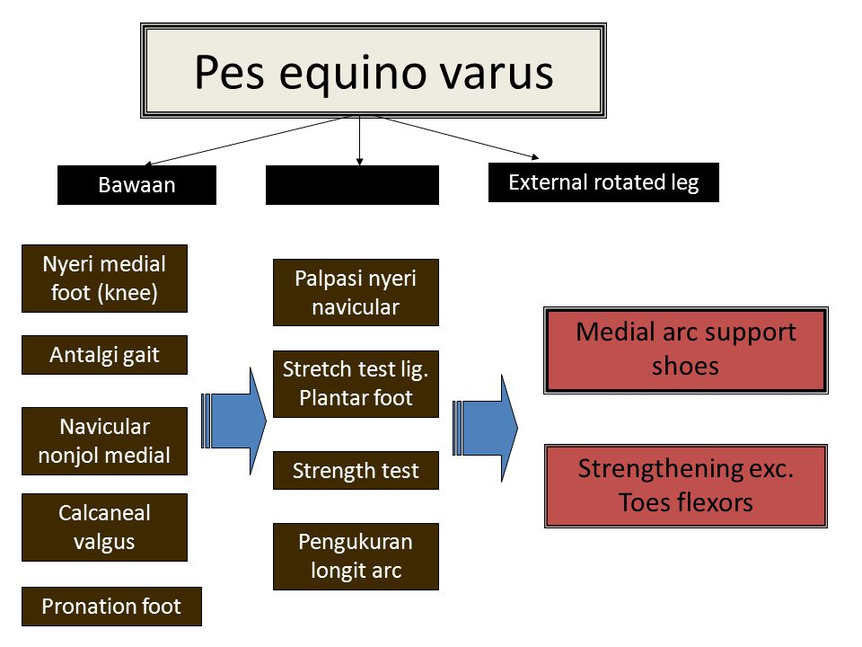 Pes equino varus Medial arc support shoes