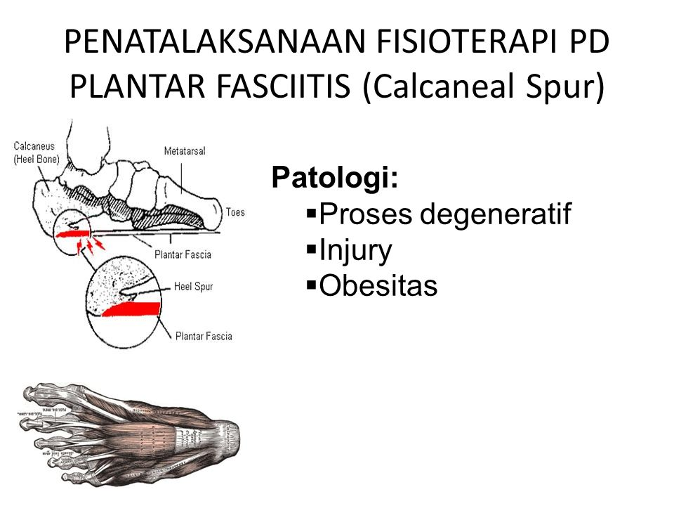 PENATALAKSANAAN FISIOTERAPI PD PLANTAR FASCIITIS (Calcaneal Spur)
