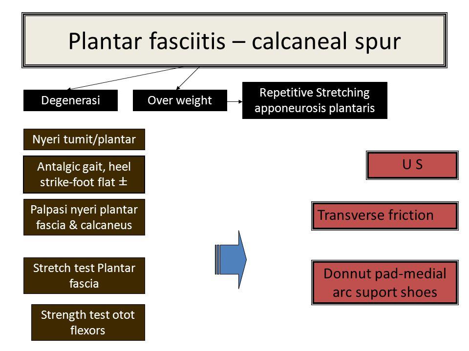 Plantar fasciitis – calcaneal spur