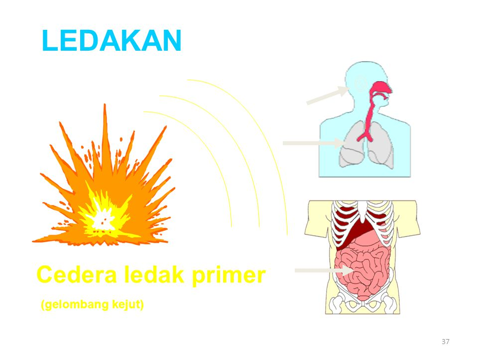 LEDAKAN Cedera ledak primer (gelombang kejut)