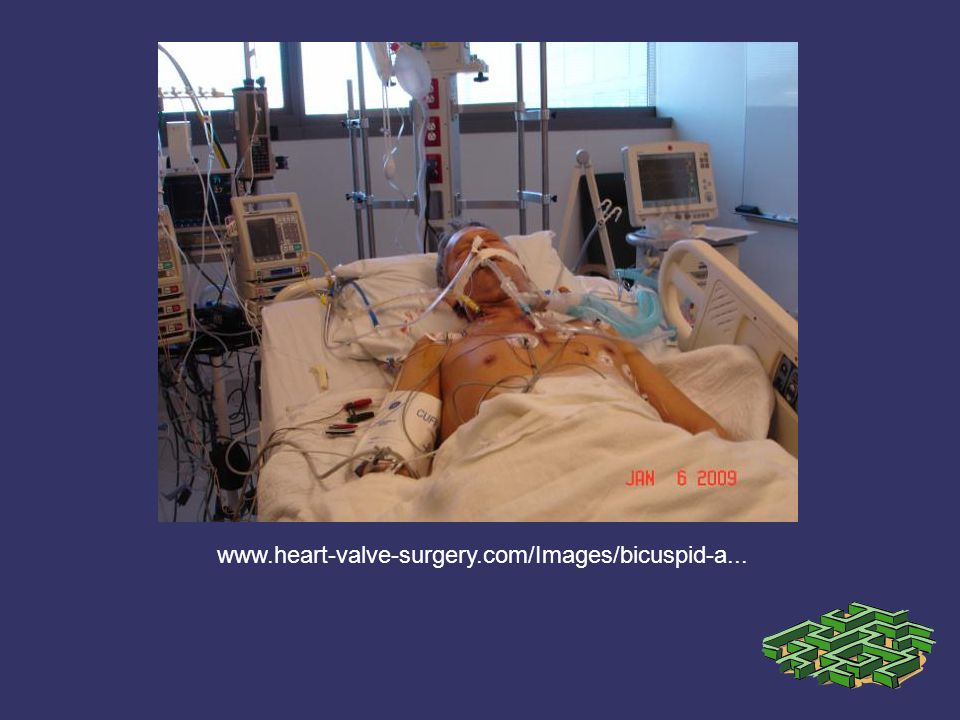 www.heart-valve-surgery.com/Images/bicuspid-a...