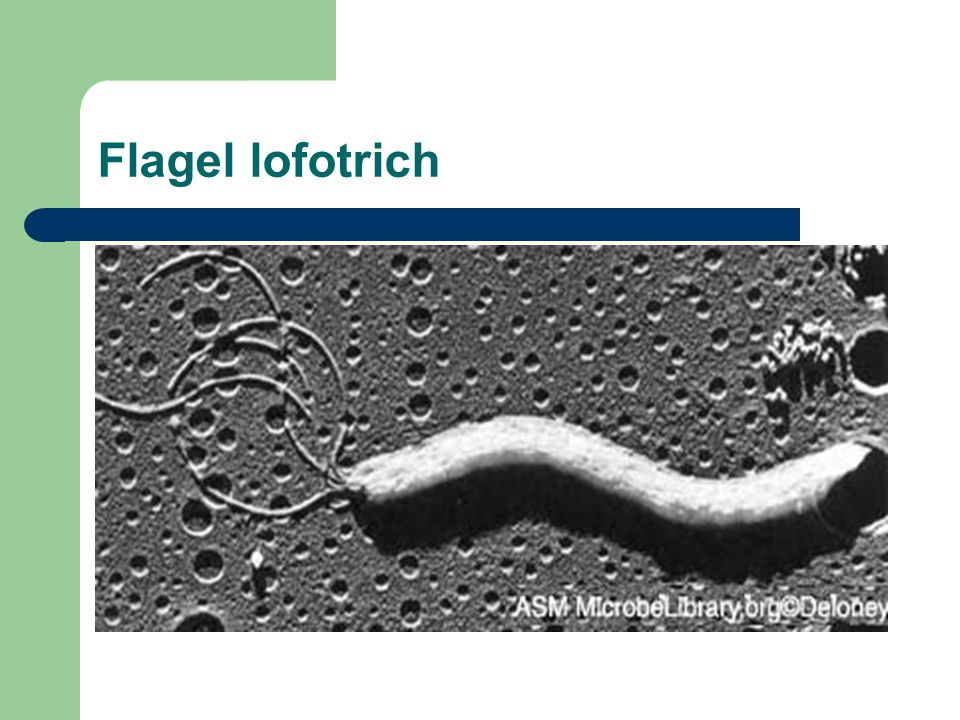 Flagel lofotrich