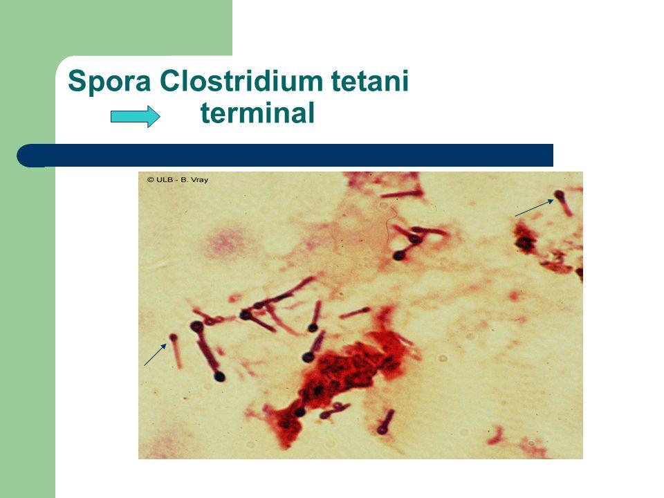 Spora Clostridium tetani terminal