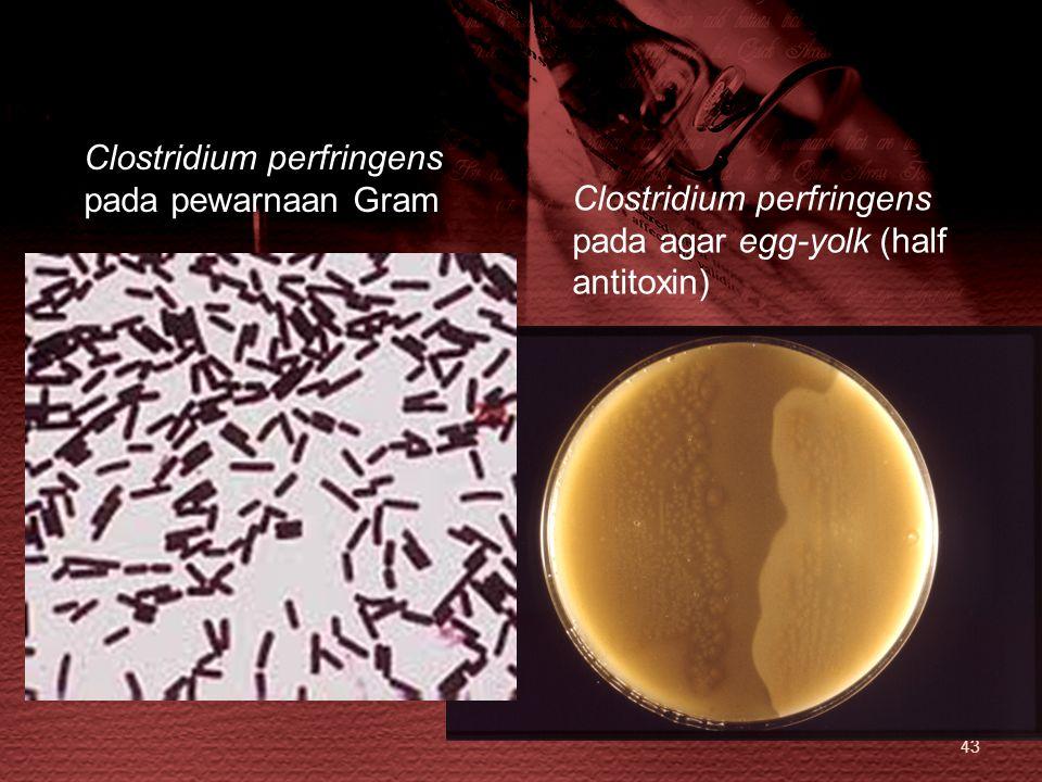 Clostridium perfringens pada pewarnaan Gram Clostridium perfringens