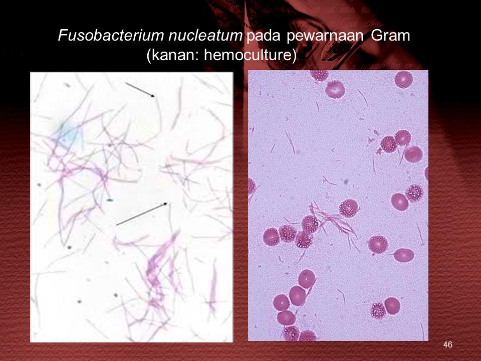 Fusobacterium nucleatum pada pewarnaan Gram (kanan: hemoculture)