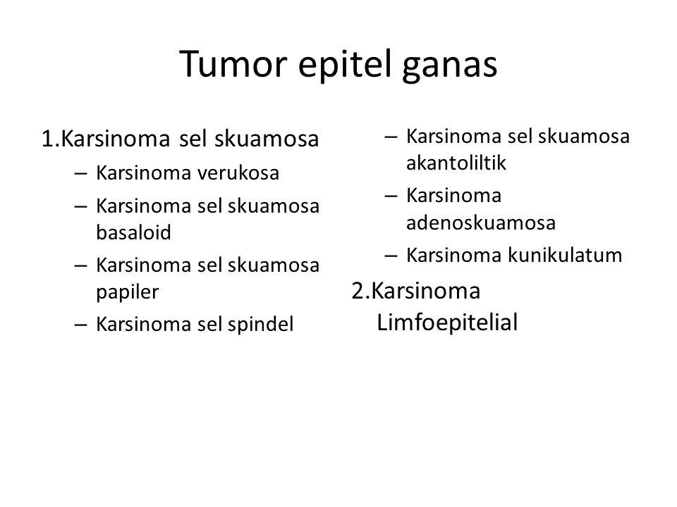Tumor epitel ganas 1.Karsinoma sel skuamosa 2.Karsinoma Limfoepitelial
