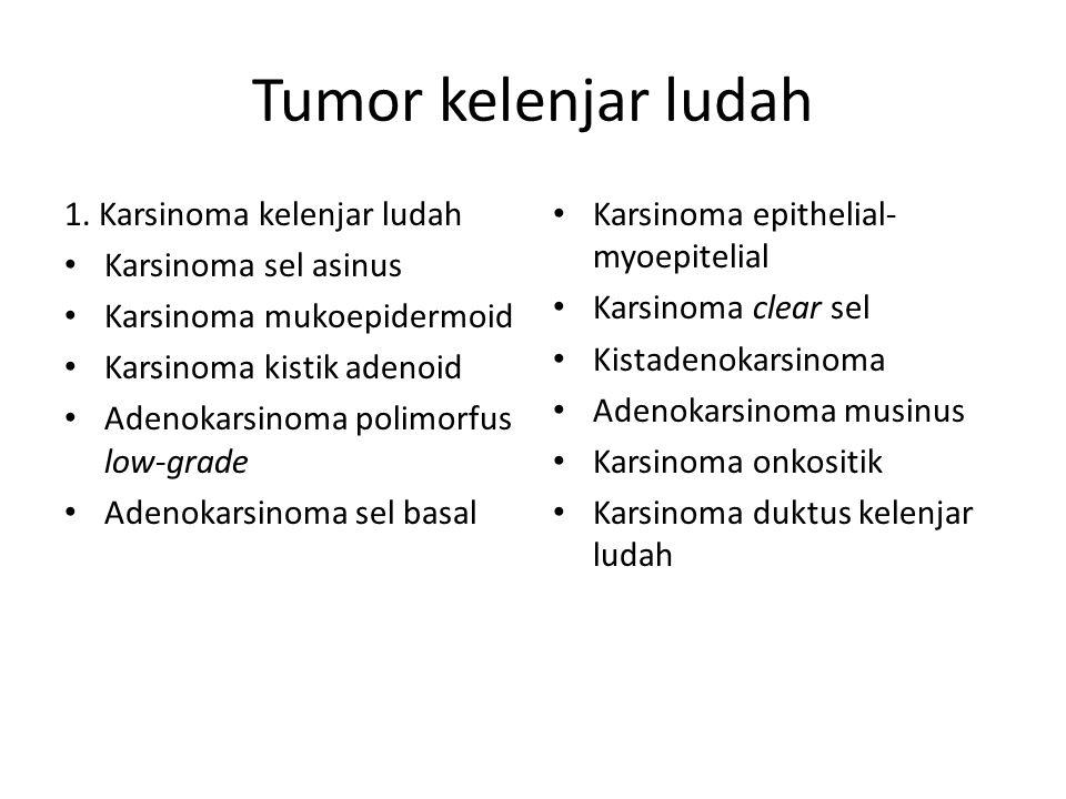 Tumor kelenjar ludah 1. Karsinoma kelenjar ludah Karsinoma sel asinus