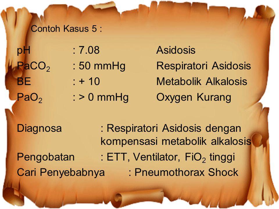 PaCO2 : 50 mmHg Respiratori Asidosis BE : + 10 Metabolik Alkalosis