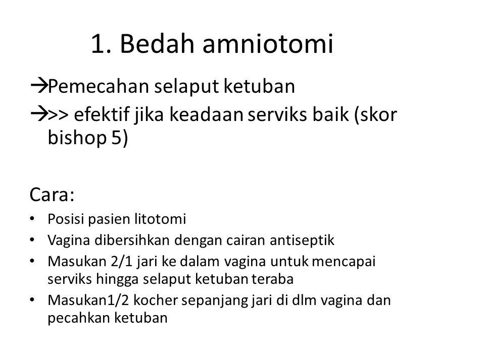 1. Bedah amniotomi Pemecahan selaput ketuban