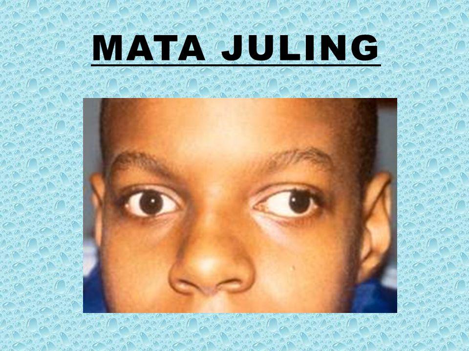 Mata juling