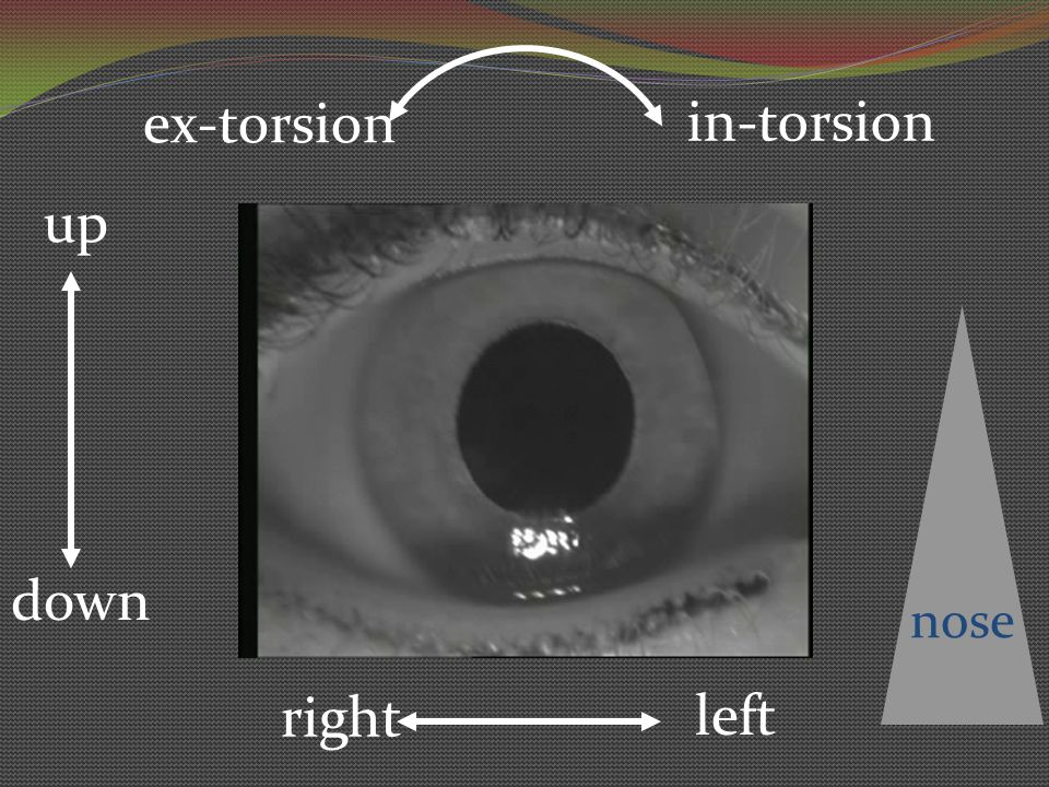 ex-torsion in-torsion up nose down right left