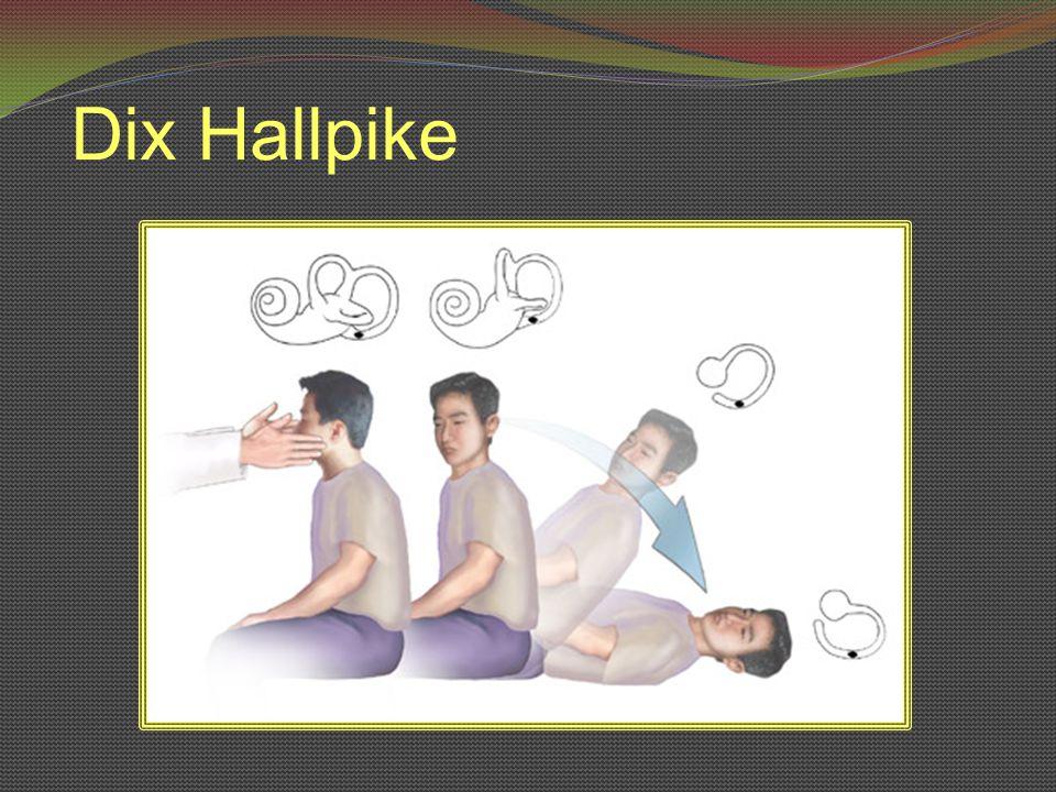 Dix Hallpike