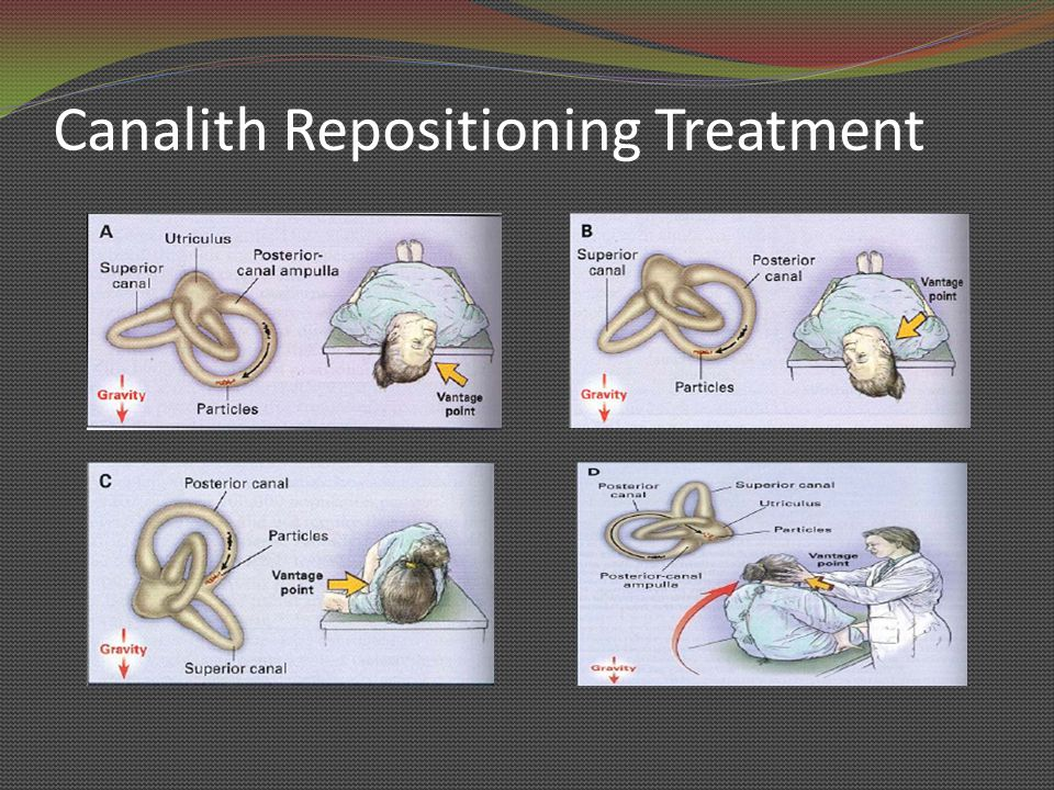 Canalith Repositioning Treatment