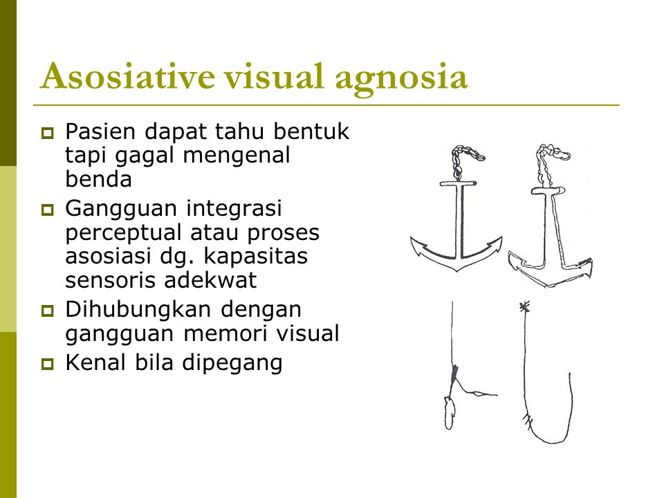 Asosiative visual agnosia