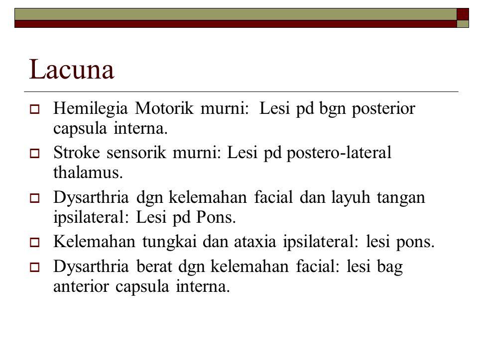 Lacuna Hemilegia Motorik murni: Lesi pd bgn posterior capsula interna.