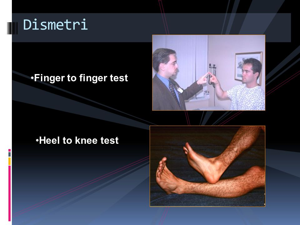 Dismetri Finger to finger test Heel to knee test