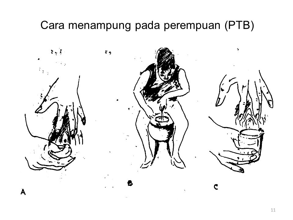Cara menampung pada perempuan (PTB)