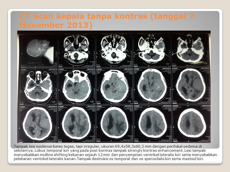 CT Scan kepala tanpa kontras (tanggal 7 November 2013)