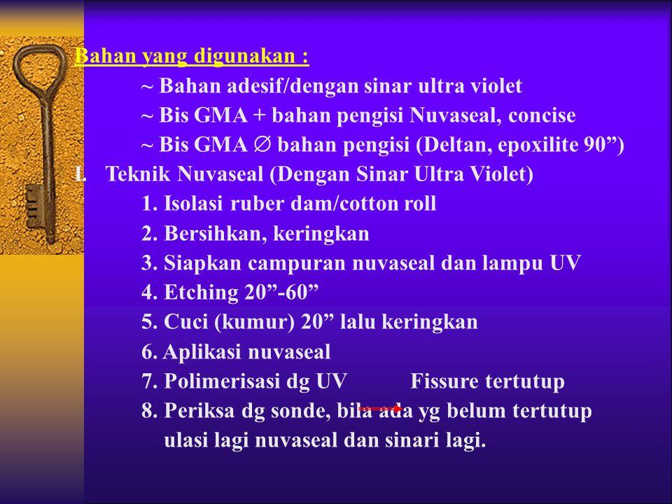 Bahan yang digunakan : ~ Bahan adesif/dengan sinar ultra violet. ~ Bis GMA + bahan pengisi Nuvaseal, concise.