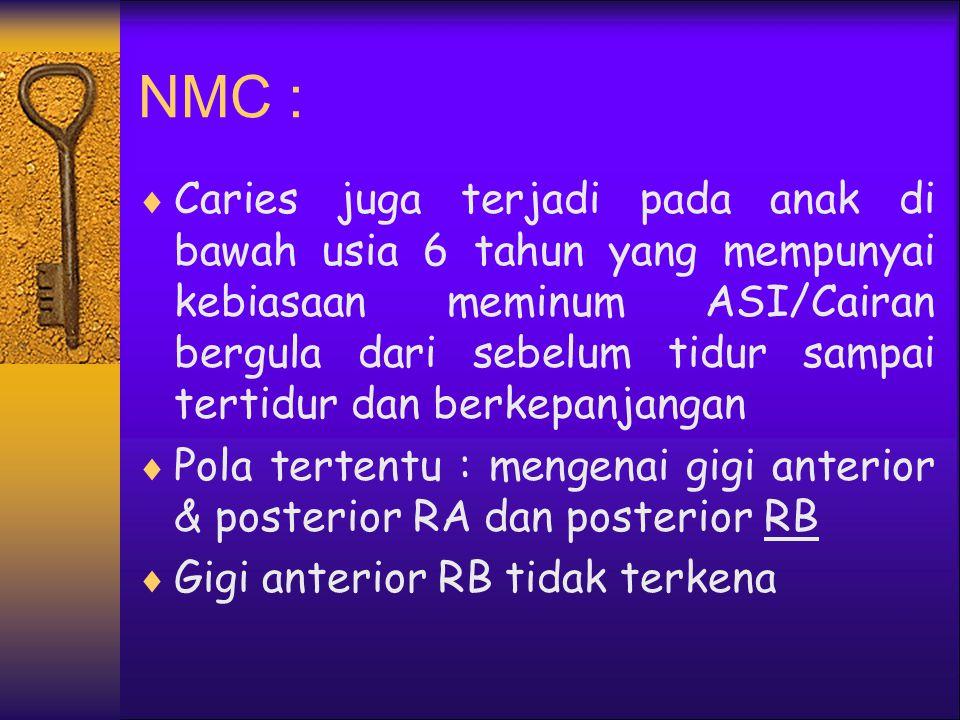 NMC :