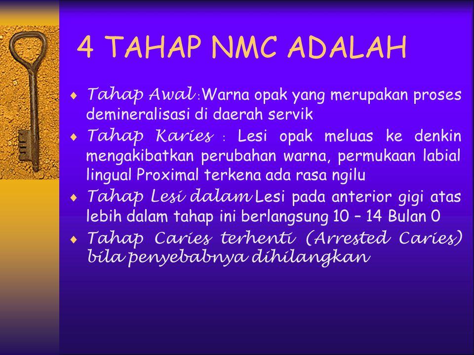 4 TAHAP NMC ADALAH Tahap Awal :Warna opak yang merupakan proses demineralisasi di daerah servik.