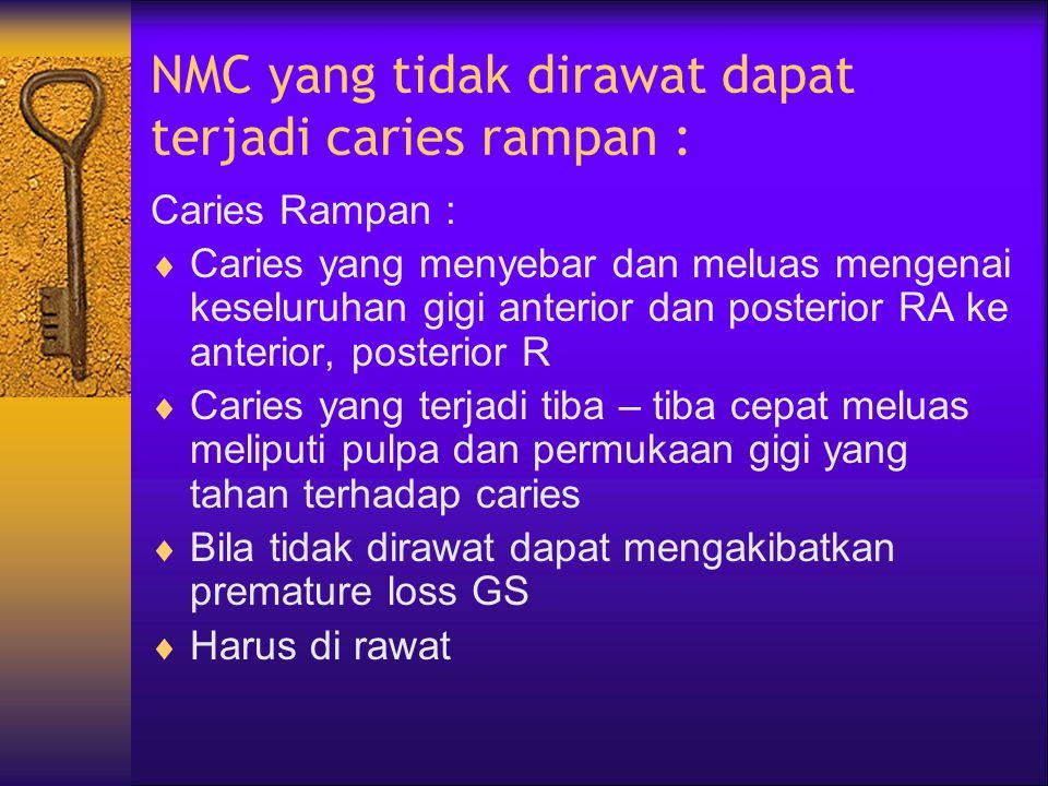 NMC yang tidak dirawat dapat terjadi caries rampan :