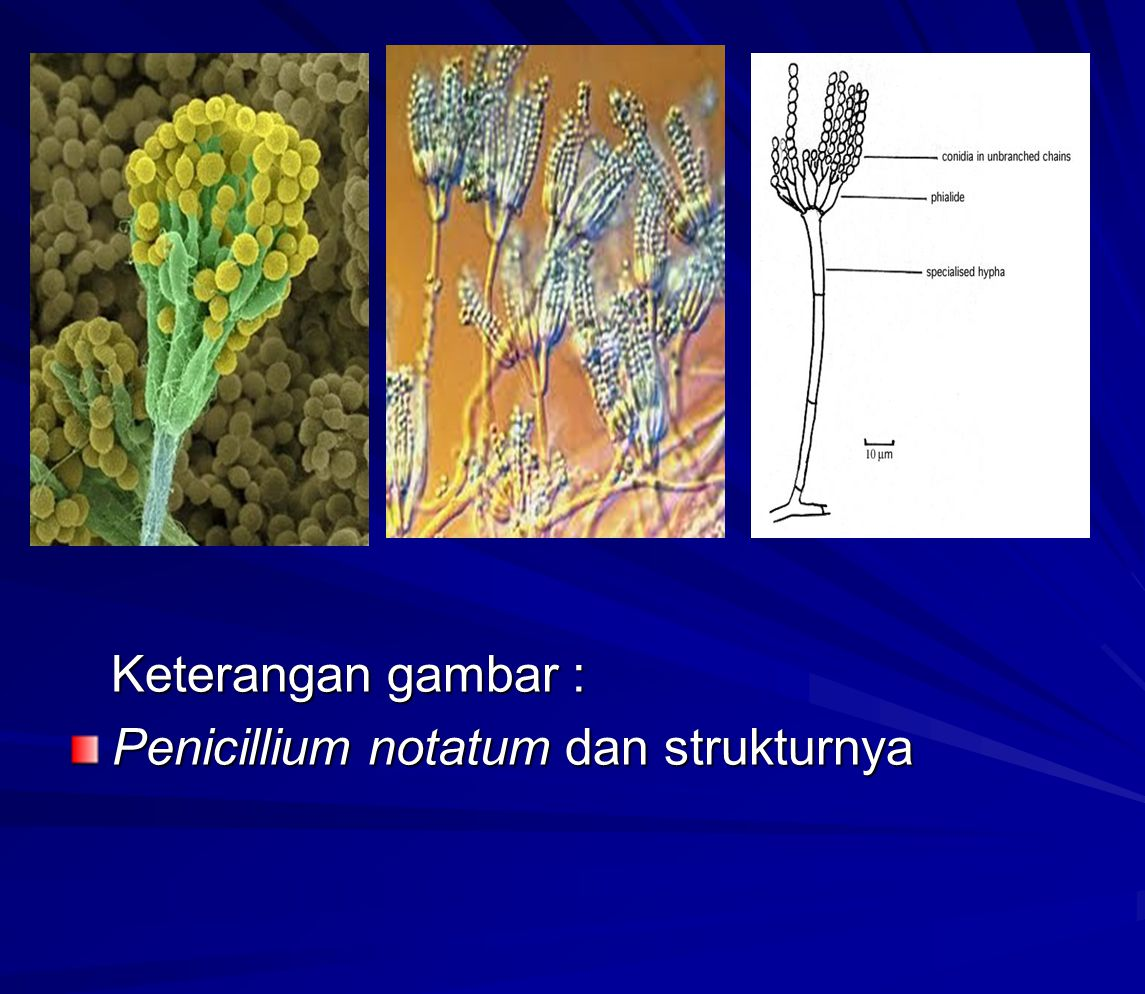 Keterangan gambar : Penicillium notatum dan strukturnya